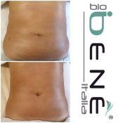 Kūno procedūros radio dažnio aparatu RFX3-3D su Bio Benè Italia kosmetika