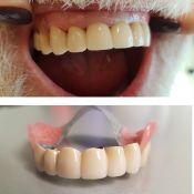 Išimami dantų protezai su užraktais