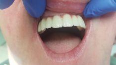Dantų protezai (cirkonio keramikos) bedančio žandikaulio fiksuoti, prisukami ant 6 implantų