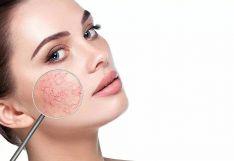 Veido išsiplėtusių kapiliarų, kraujagyslinių darinių šalinimas, rožinės gydymas lazeriu