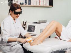 Rankų ir kojų nagų grybelio gydymas lazeriu
