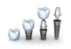 Dantų inplantavimas