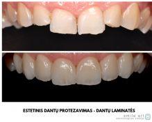 Dantų laminatės (estetinis dantų protezavimas)