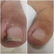 Įaugęs kojos nagas