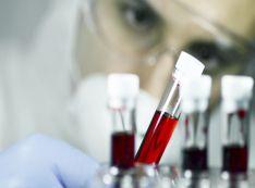 Kraujo krešėjimo tyrimai