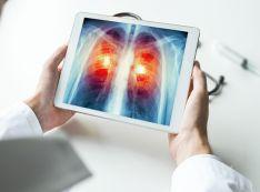 Magnetinio rezonanso tomografijos (MRT) tyrimai