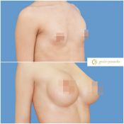 Plastinės operacijos