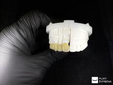 Dantų protezų gamyba