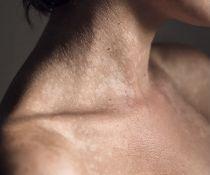 Odos ligų dignostika ir gydymas