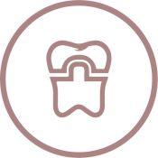 Dantų protezavimas neišimamais protezais