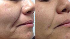 4D veido odos atjauninimas lazeriu