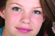 Aknė (acne) gydymas lazeriu