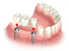Dantų Implantai
