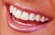 Dantų papuošalai