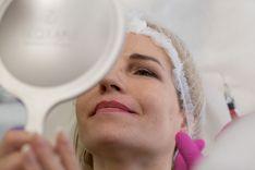 """Rozacijos gydymas (Veido rožinė) """"Syneron Candela Emax"""" lazeriu"""