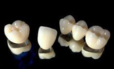 Metalo keramikos dantų protezai