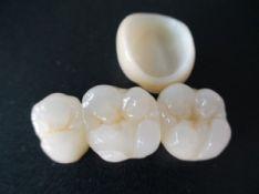 Dantų protezai iš cirkonio