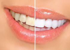 Profesionali burnos higiena, dantų balinimas Beyond lempa