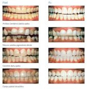 Dantų balinimas Philips Zoom Sistema