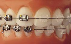 Ortodontija, breketai