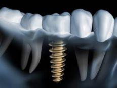 Protezavimas ant implantų