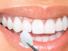 Dantų laminatės