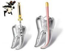 Endodontinis gydymas naudojant mikroskopą