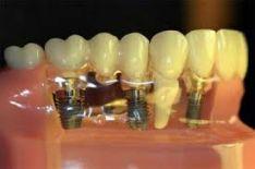 Implantai