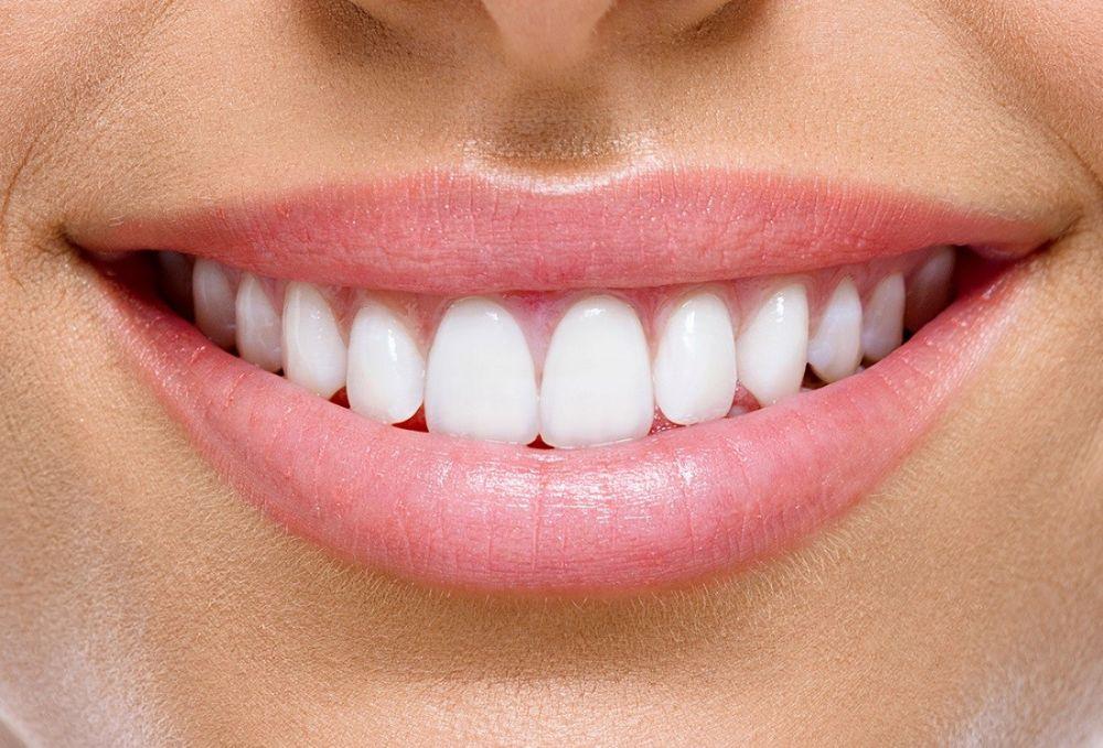 Porceliano dantų laminatės