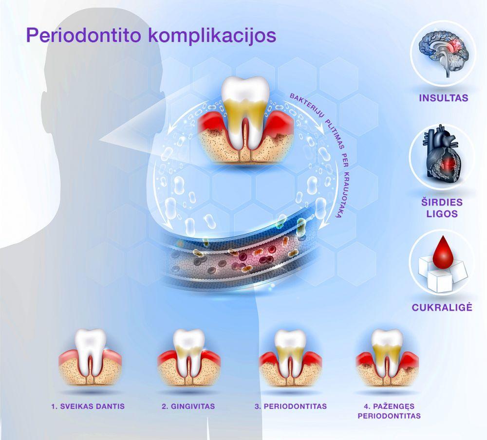 periodontito komplikacijos