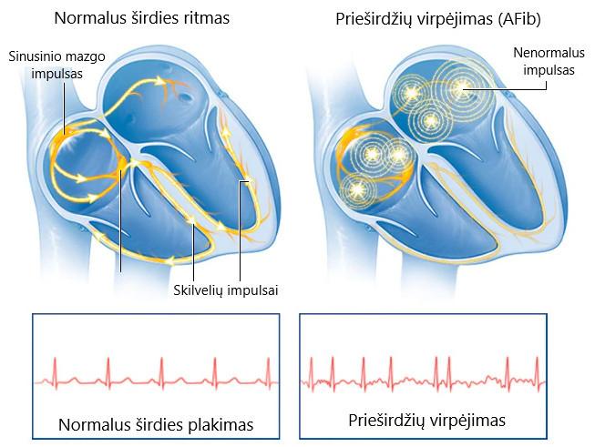 kas yra teisinga prieširdžių hipertenzija)