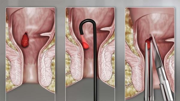 hemorojus su hipertenzija