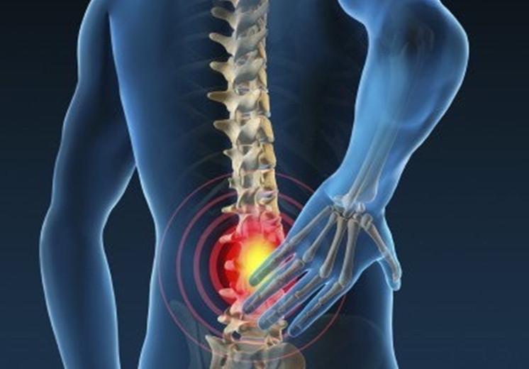 Nugaros skausmas, kaip gydyti?