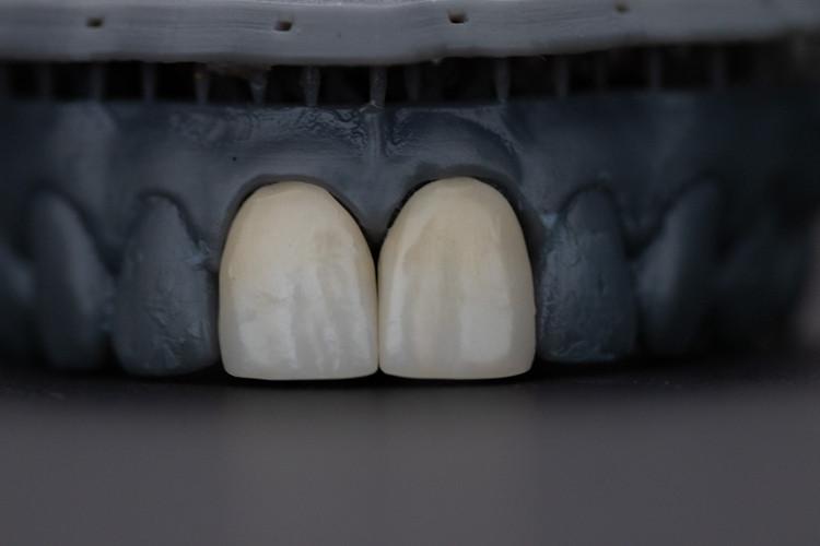 Koks dantų implantas geriausias? Ką rinktis?