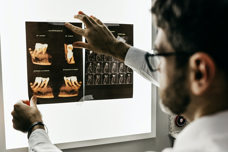 Dantų implantai 2021 tendencijos