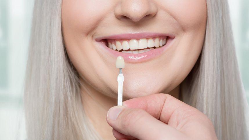 Gydytoja odontologė išsklaidė mitus apie dantų laminates