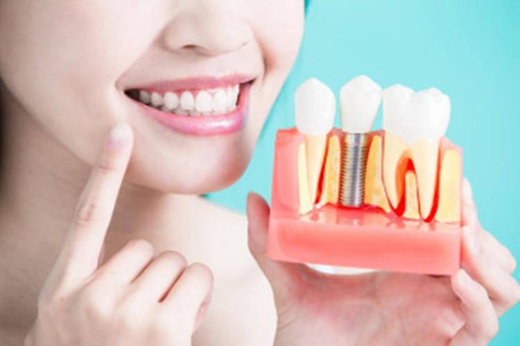 Implantuoti nereikia laukti: odontologė atsakė, kurioje vietoje ir kodėl geriau dėti kablelį
