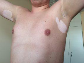 vitiligo varpos